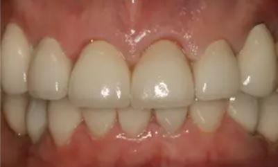 After Dental Implants
