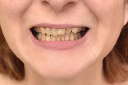 Before Dental Veneers