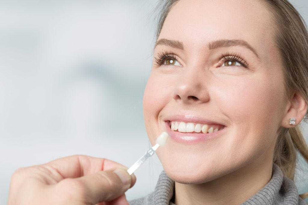 Dental Veneers - Advanced Healthcare Dental Centre